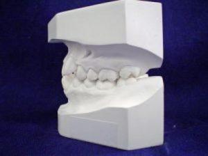 Greit bus galima išsiauginti naujus dantis?