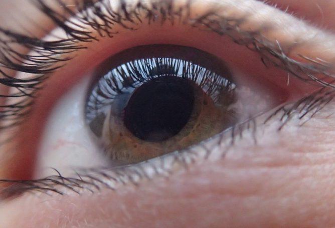Mirguliuoja ir žaibuoja akyse – arba pervargote, arba susirgote rimta akių liga